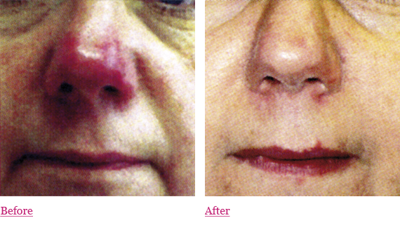 Bellair Laser Clinic: Laser Hair Removal & Skin Care