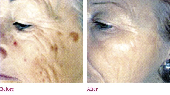 Medical Strength Facial Peels