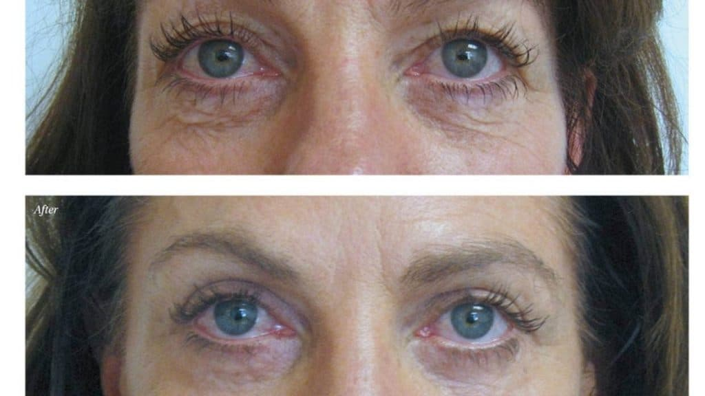 non surgical eye lift Ireland or non surgical blepharoplasty
