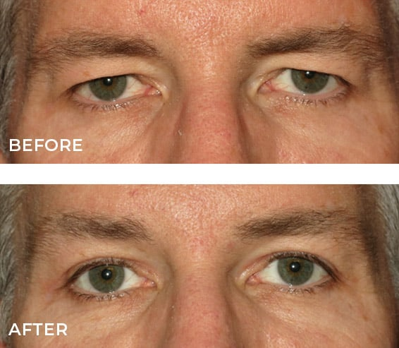 non surgical eye lift Ireland before and after